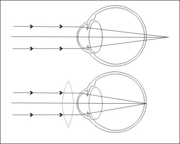 Hypermétropie optométrie BEST FACTORY Haut Rhin Colmar